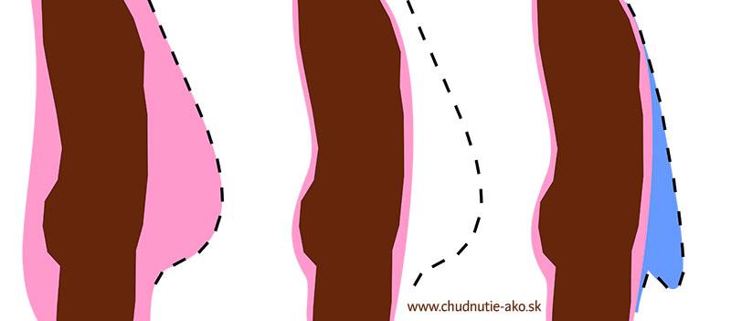 Převislá kůže na břiše - schéma